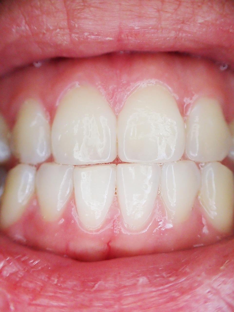 zdrowe zęby, dentysta, stomatolog